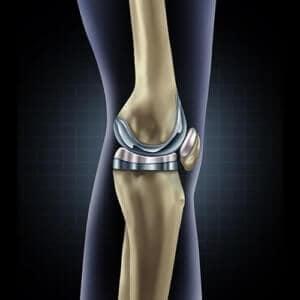 Knee Specialist in Nashik