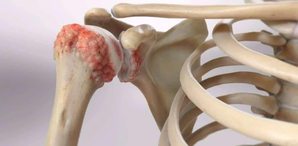Shoulder Pain Treatment in Nashik